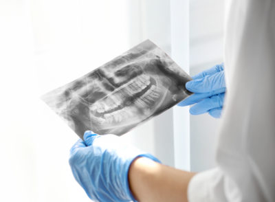 dental x rays for preventive care beach dental center
